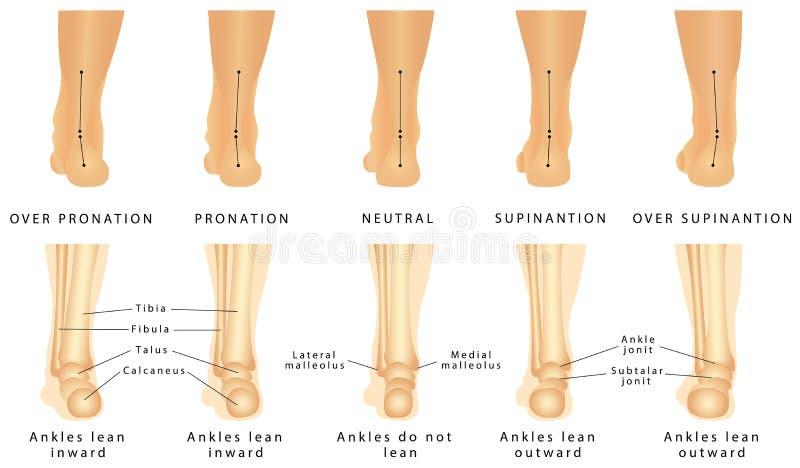 Deformação do pé ilustração stock