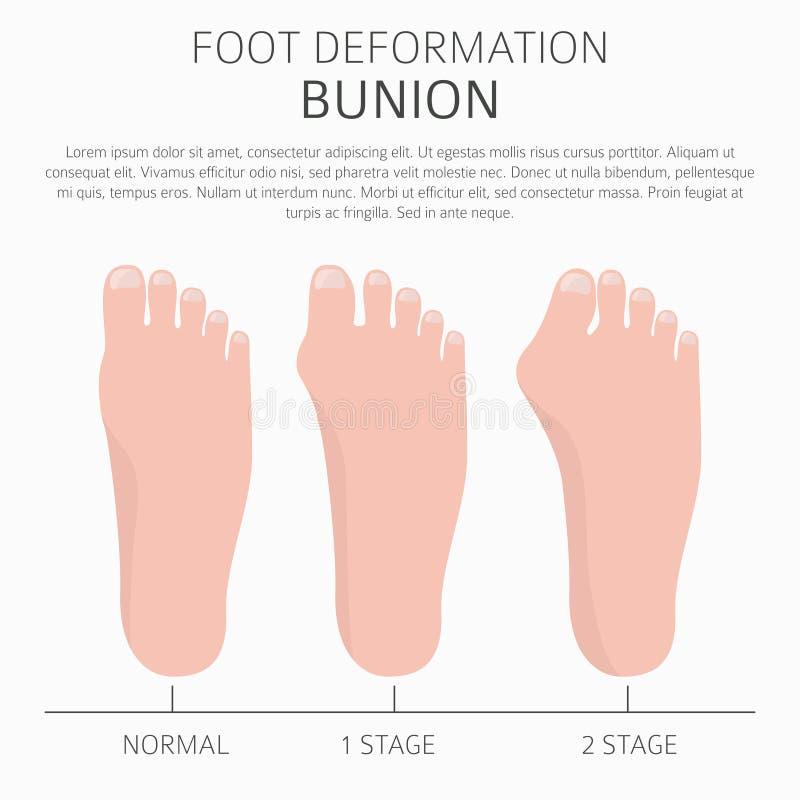 Deformación del pie como desease médico infographic Causas del bunio ilustración del vector