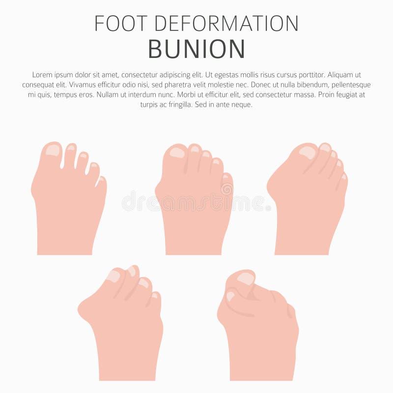 Deformación del pie como desease médico infographic Causas del bunio stock de ilustración