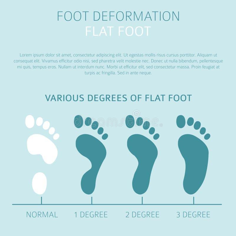 Deformación del pie como desease médico infographic Causas del plano stock de ilustración