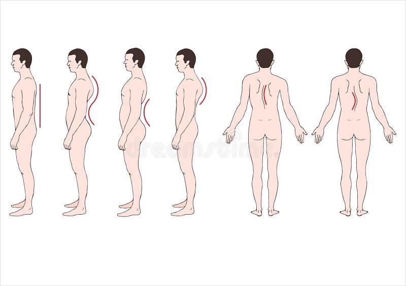 Deformacja kręgosłup royalty ilustracja