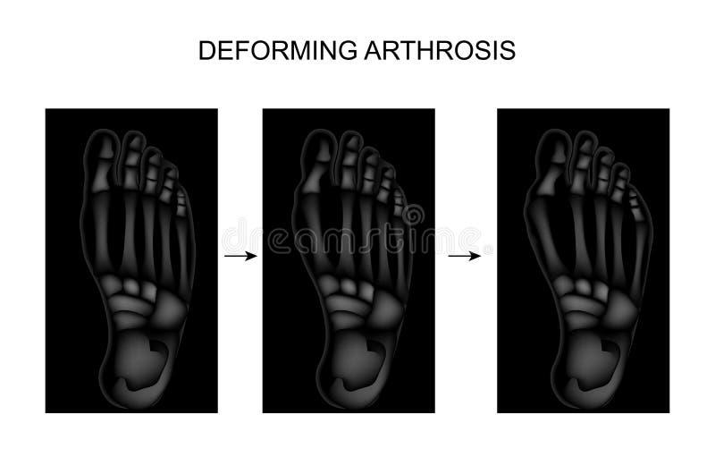 Deformation av arthrosisen av foten royaltyfri illustrationer