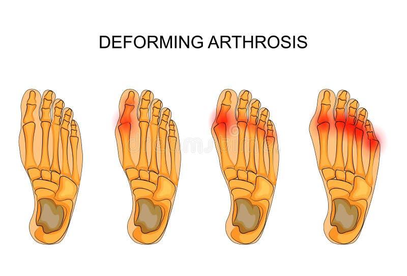 Deformation av arthrosisen av foten stock illustrationer