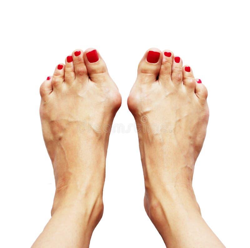 Deformidad de Valgus de las piernas debidas del pie plano cruzado (valgus del hallux) imagenes de archivo