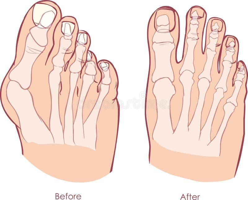 Deformidade do pé humano ilustração do vetor