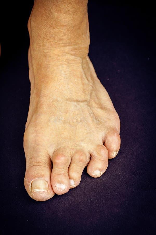 Deformità del dito del piede di artrite di Rrheumatoid immagine stock libera da diritti