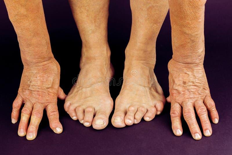 Deformità della mano e del dito del piede di artrite di Rrheumatoid fotografie stock
