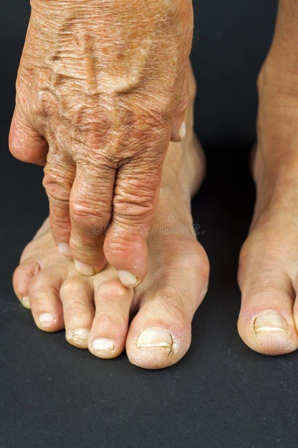 Deformità della mano e del dito del piede di artrite di Rrheumatoid fotografia stock