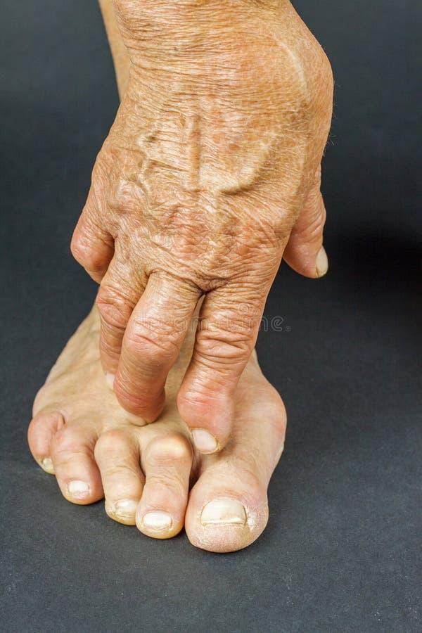 Deformità della mano e del dito del piede di artrite di Rrheumatoid immagine stock