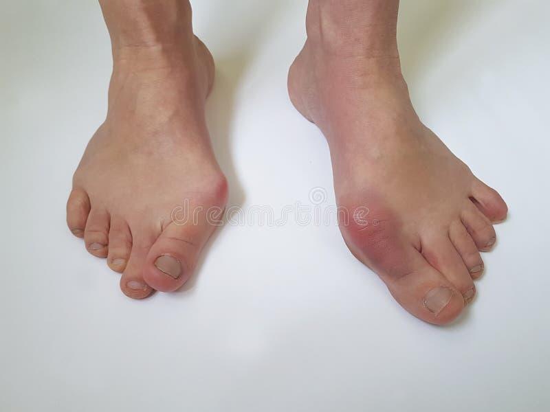 Deformità femminile della gamba di alluce valgo dolorosa su un fondo bianco immagine stock libera da diritti