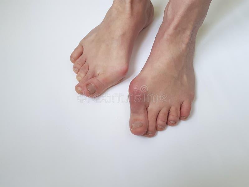 Deformità femminile di problema della gamba di alluce valgo dolorosa su un fondo bianco fotografie stock libere da diritti