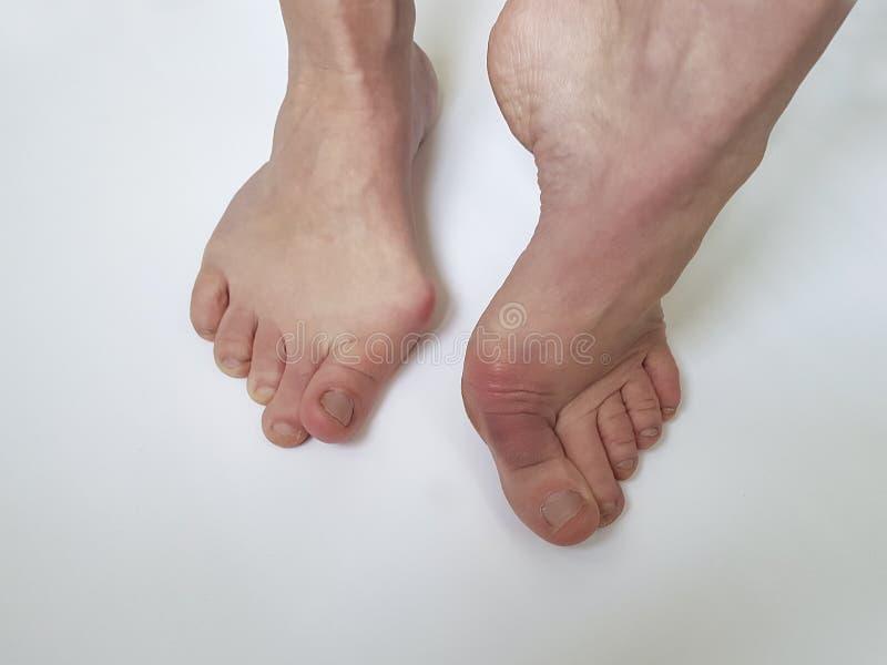 Deformità ortopedica della gamba femminile di alluce valgo dolorosa su un fondo bianco immagine stock libera da diritti
