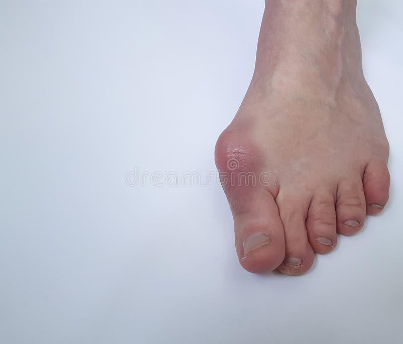 Deformità paziente di problema della gamba femminile di alluce valgo dolorosa su un fondo bianco fotografia stock libera da diritti