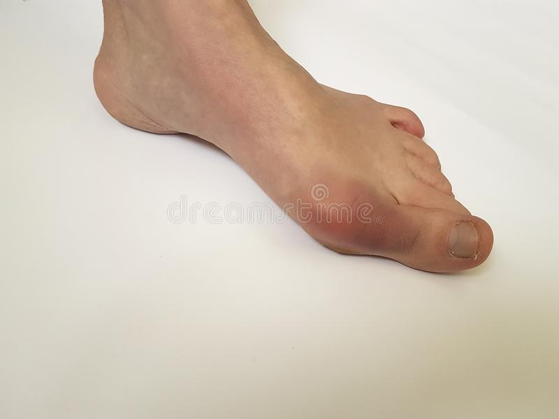 Deformità paziente di problema di deviazione femminile della gamba di alluce valgo dolorosa su un fondo bianco fotografia stock libera da diritti