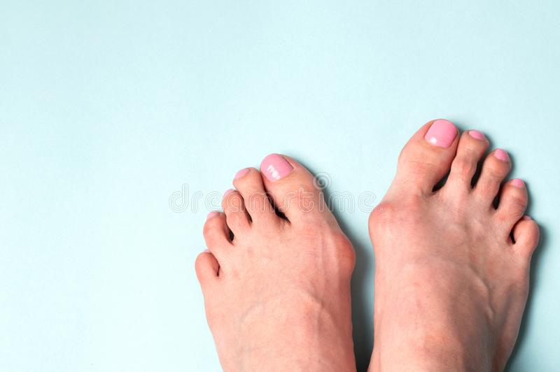 Deformità valga flatfoot Problema e malattia ortopedici fotografie stock libere da diritti