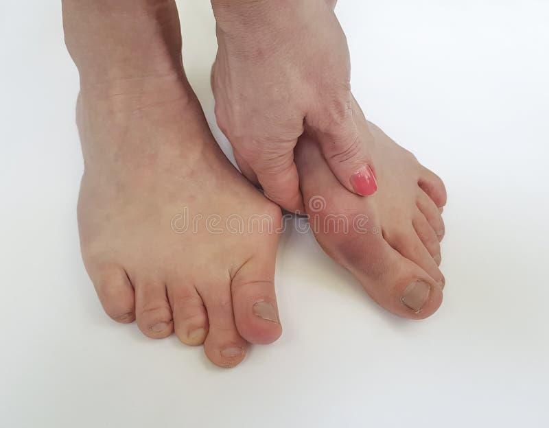 Deformityon femminile valgo della gamba un fondo bianco immagini stock libere da diritti