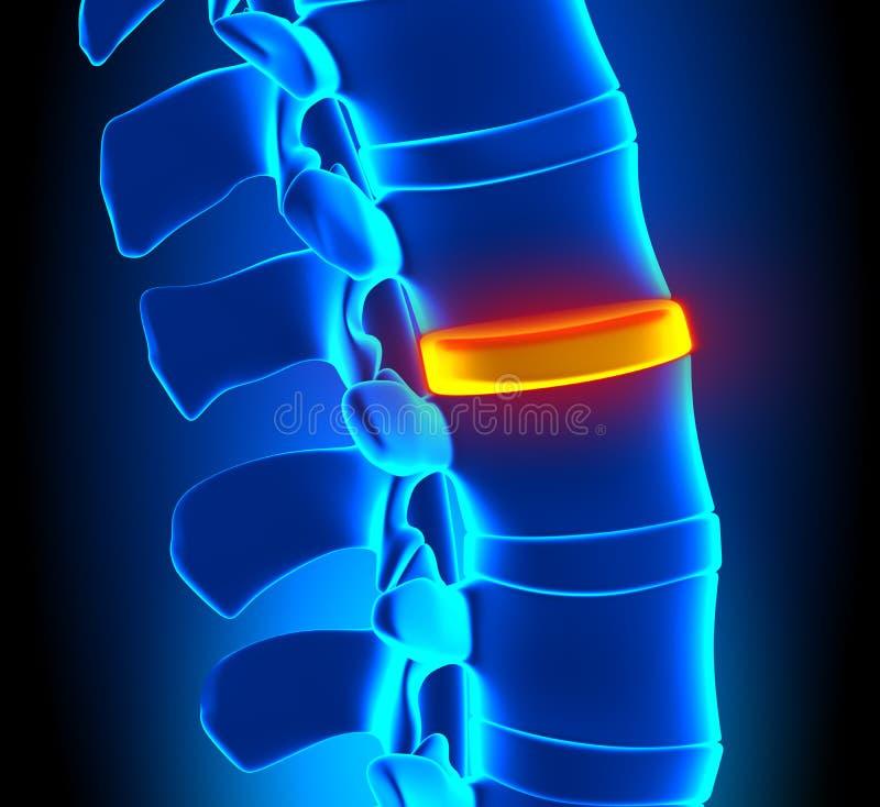 Degeneración del disco - problema de la espina dorsal stock de ilustración