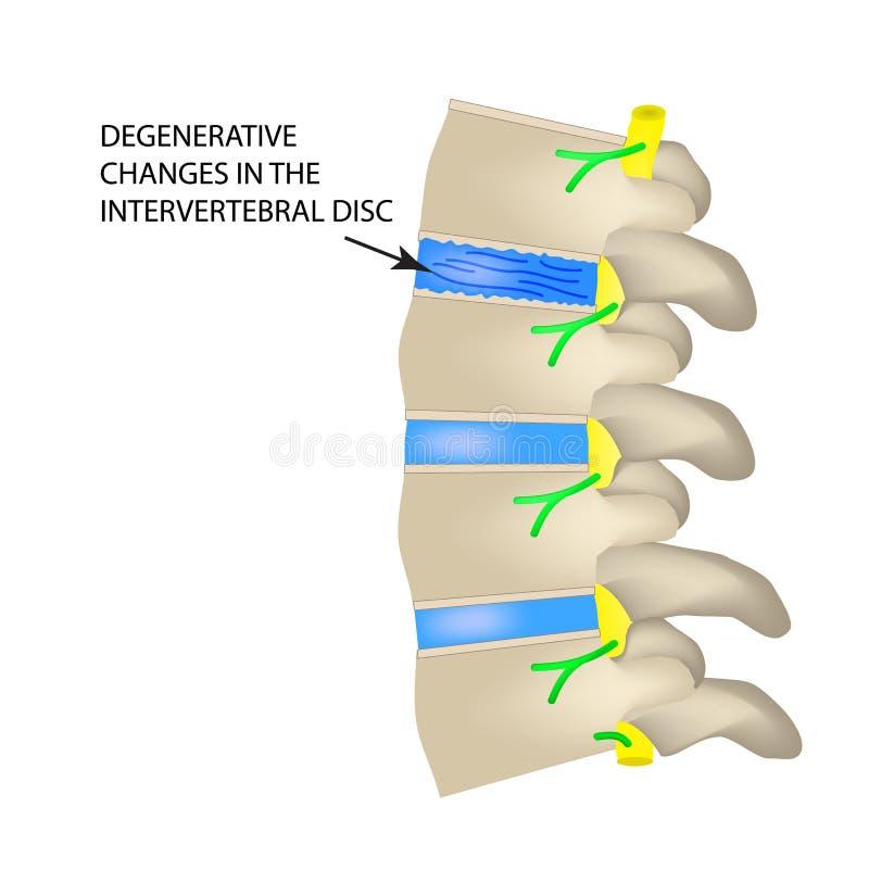 Degenerative changes in the intervertebral disc. Vector illustration on isolated background.  stock illustration