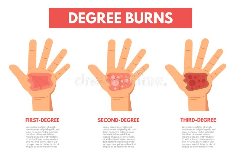 Degree burns of skin. Infographic vector illustration