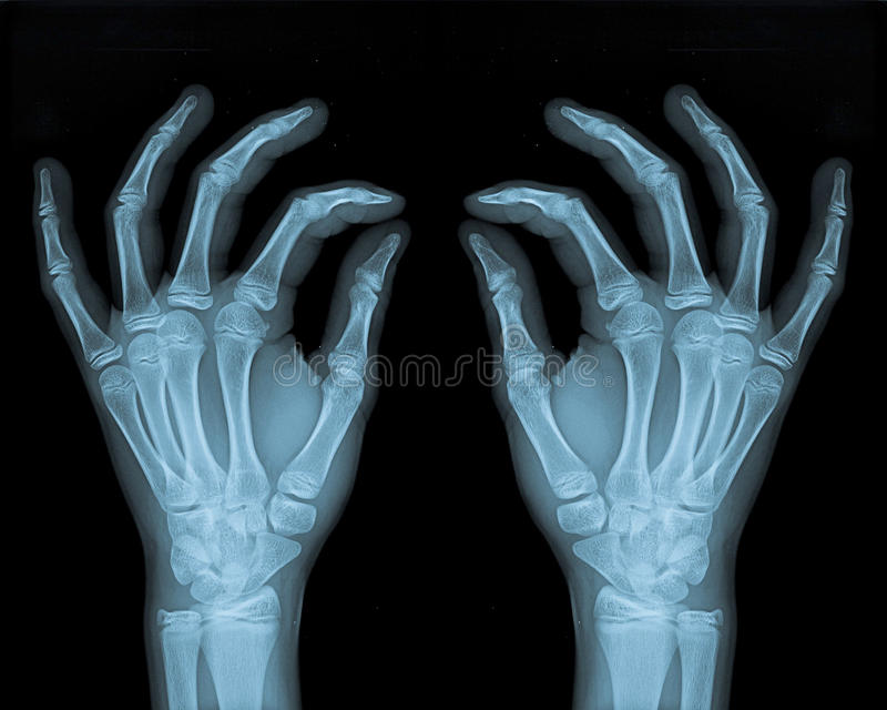 Download Delicate Hands stock photo. Image of hospital, anatomy - 18080954