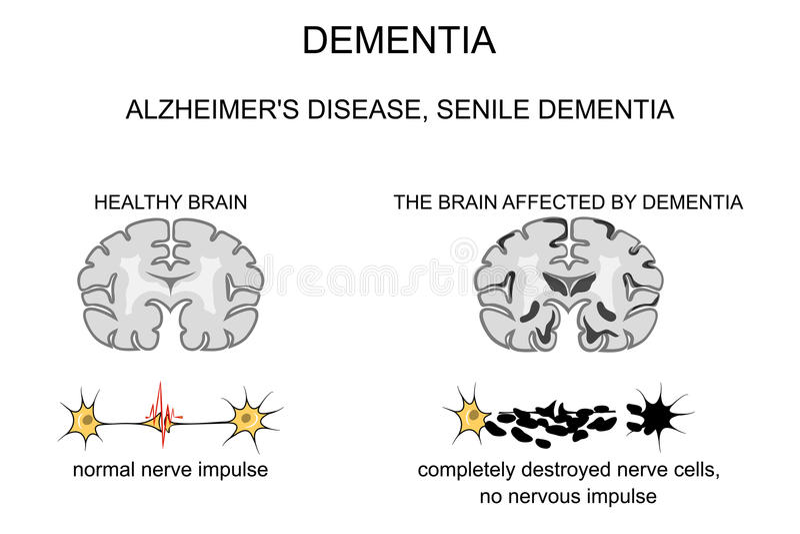 Demência, doença de Alzheimer s patogénese ilustração royalty free