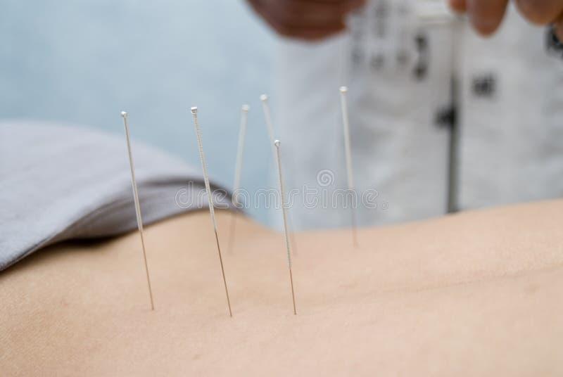 demande de règlement d'acuponcture photo stock