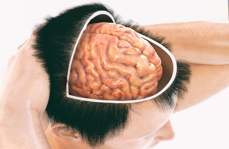 Demencia, Alzheimer - represente 1 de 2 - representación 3D ilustración del vector