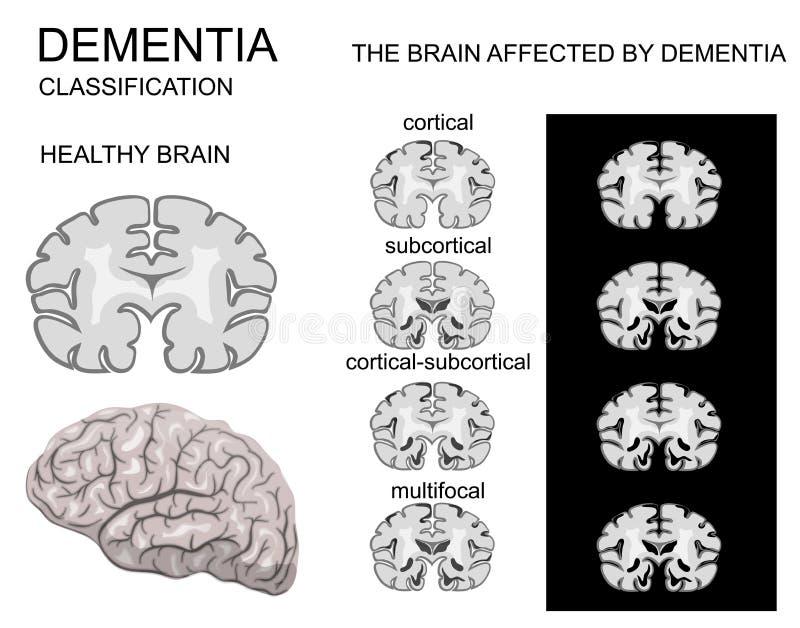 Demencja, choroba alzhaimera royalty ilustracja