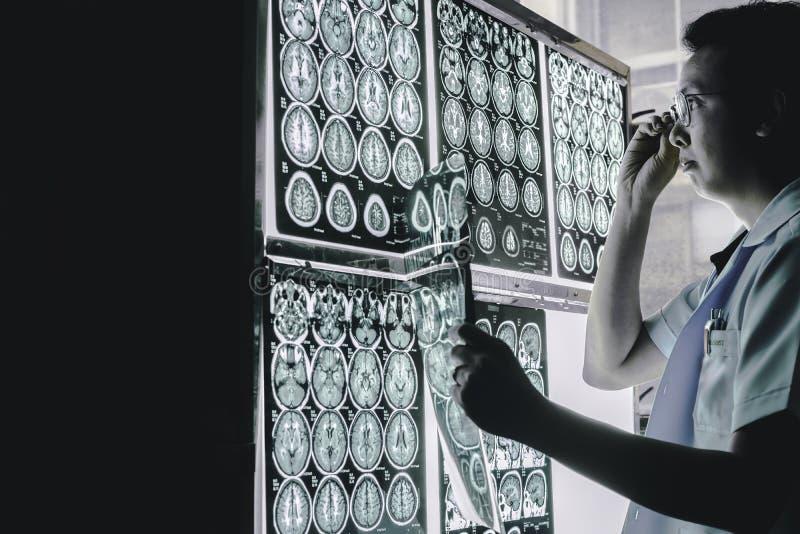 Demenshjärna på MRI royaltyfria foton
