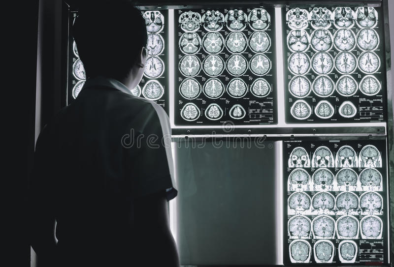 Dementia brain on MRI stock photography