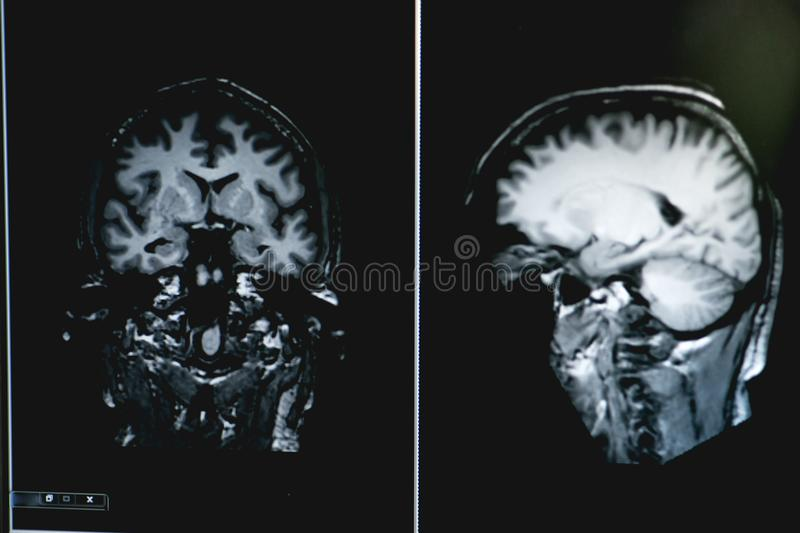 Dementia on MRI film. brain dementia. royalty free stock images