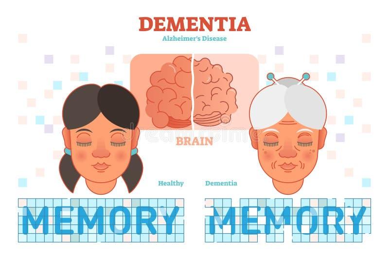 Demenz- oder Alzheimer-` s Krankheitskonzeptvektor-Illustrationsdiagramm mit junger und alter Frau stock abbildung