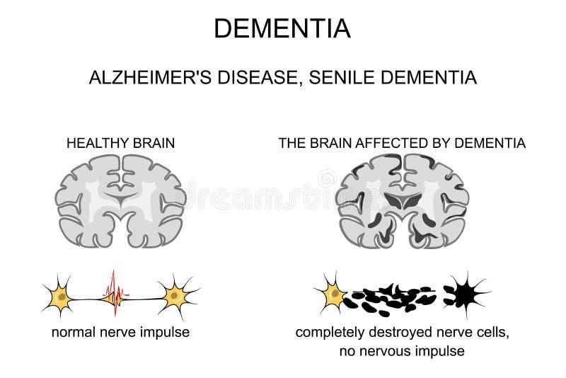 Demenza, malattia di Alzheimer s patogenesi royalty illustrazione gratis