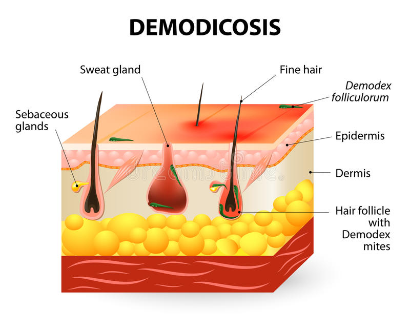 Demodicosis Demodexmijt vector illustratie
