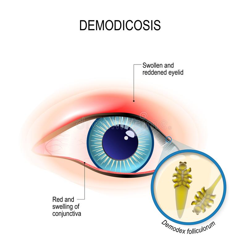 Demodicosis of eyelid and red eyes. Close-up demodex through mag. Nifying glass. Demodex folliculorum is a type of skin mite that lives in hair follicles. Human royalty free illustration