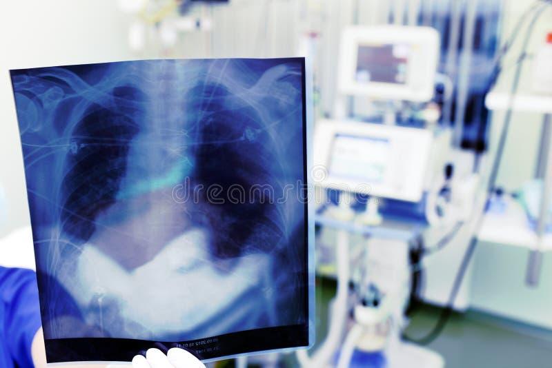 Demonstracja promieniowanie rentgenowskie w klinice fotografia stock