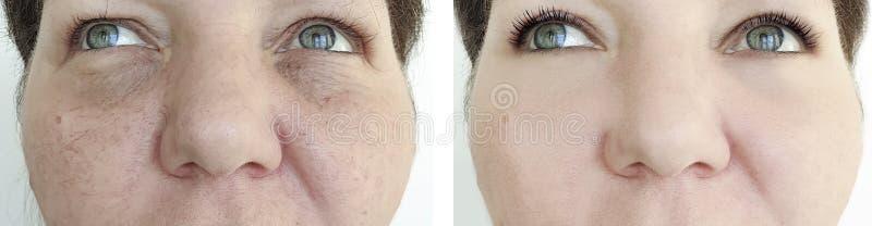 Den äldre kvinnaframsidan rynkar behandling för cosmetology för hudföryngring före och efter arkivbilder