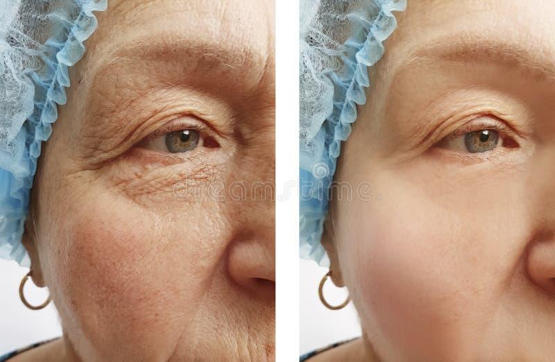 Den äldre kvinnaframsidan rynkar och före och efter att hydratisera collagentillvägagångssätt royaltyfria bilder