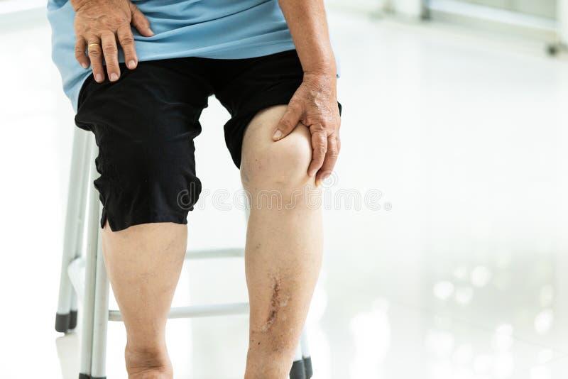Den äldre kvinnan med kroniska knäproblem och lägger benen på ryggen smärtar att rymma hennes knä, och massera med handen, smärta arkivfoto