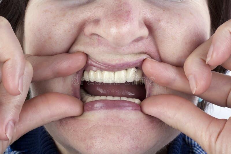 Den äldre kvinnan visar de nya keramiska tandproteserna arkivbild