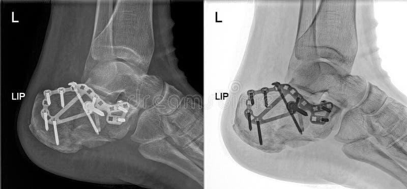 Den brutna hälröntgenstrålen som fixas med skruvar och plattan, fot smärtar på doktorskontoret royaltyfria bilder