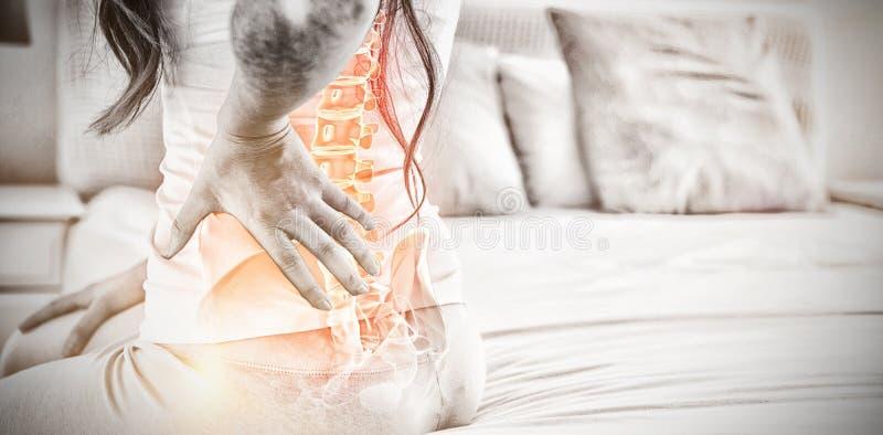 Den Digital komposit av Highlighted ryggen av kvinnan med tillbaka smärtar fotografering för bildbyråer