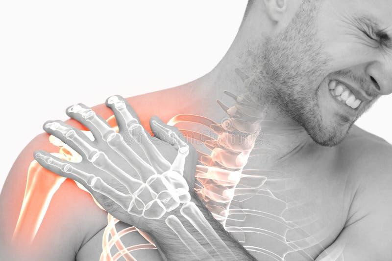 Den Digital komposit av Highlighted skuldran smärtar av man royaltyfri foto