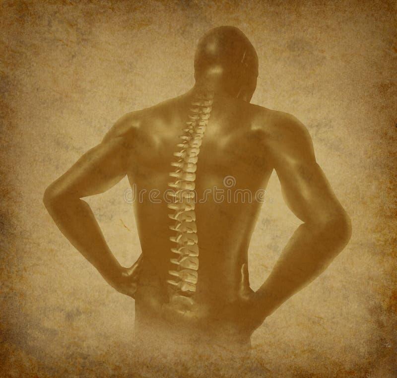 den forntida tillbaka grungehumanen smärtar den ryggrads- ryggen arkivbild