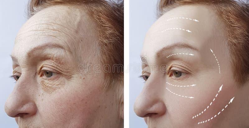 Den gamla kvinnan rynkar för och lyftande dermatologi efter resultatmedicintillvägagångssätt, ansiktsbehandling royaltyfri foto