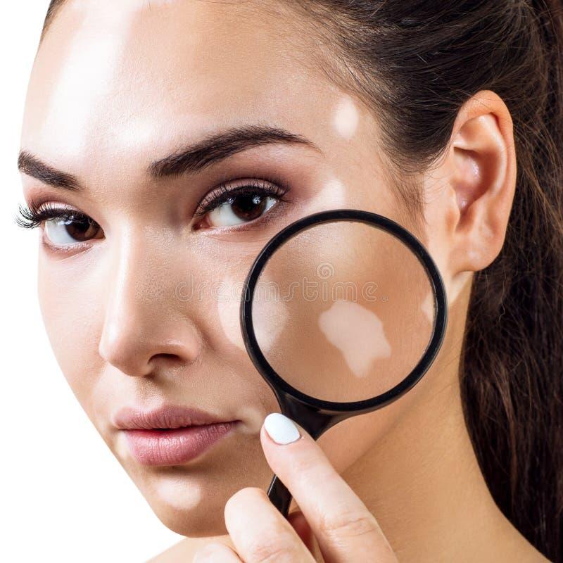 Den h?rliga kvinnan med vitiligo rymmer f?rstoringsglaset arkivbild