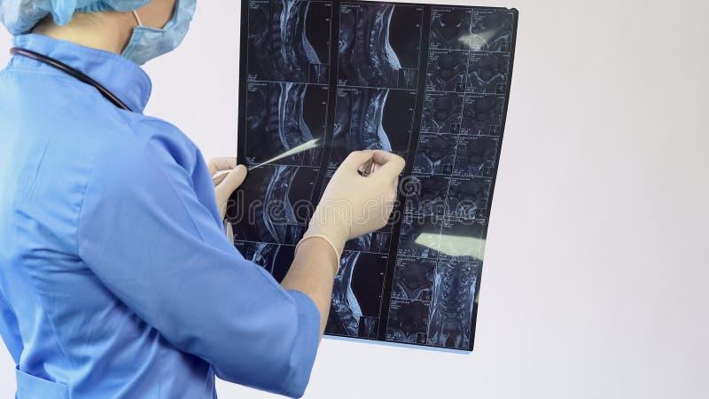 Den kvinnliga doktorn som analyserar den tålmodiga ryggen, benar ur röntgenstrålen som är tillbaka smärtar behandling, sjukhus arkivbild