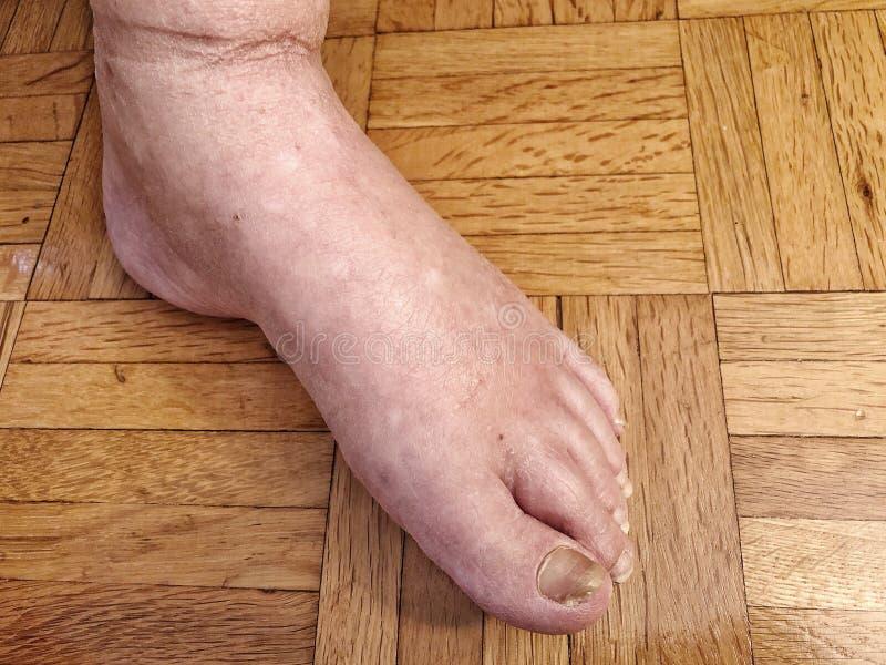 Den kvinnliga foten med skadlig spikar på grund av svamp royaltyfria bilder