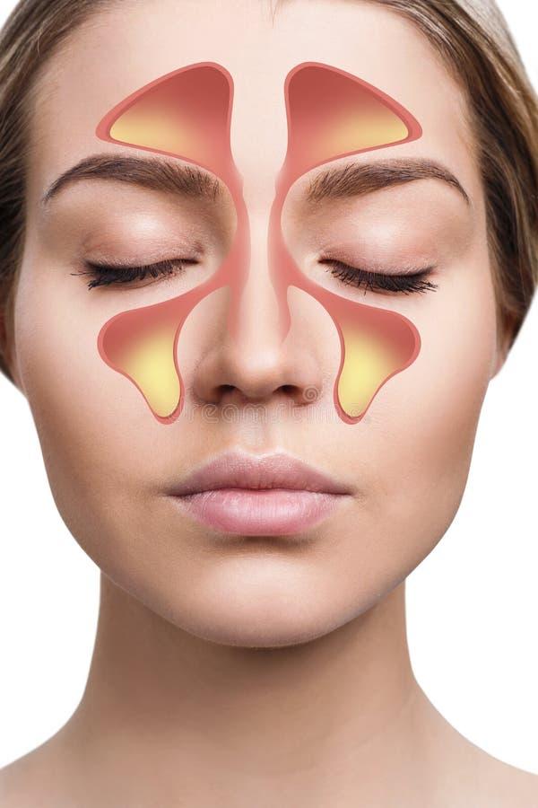 Den kvinnliga framsidan visar nasal bihåla med förkylning över vit bakgrund royaltyfria foton