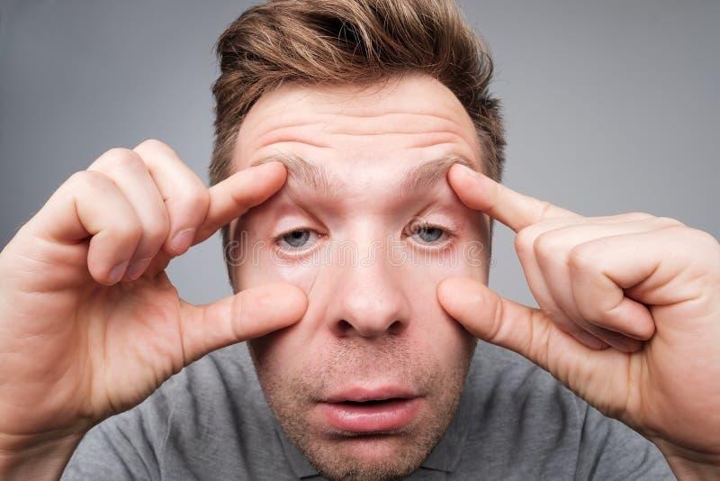 Den ledsna unga mannen lider från sömnlöshet Han försöker att öppna hans ögon med fingrar royaltyfria bilder